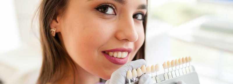 Dental-Veneers-in-Keller-TX